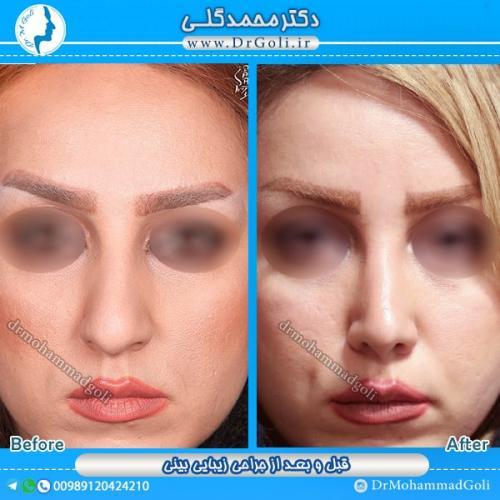 جراحی بینی استخوانی 8
