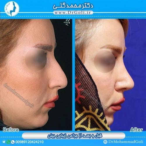 جراحی بینی استخوانی 9