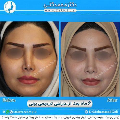 جراحی ترمیمی بینی 1