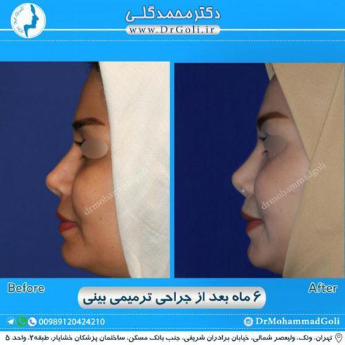 جراحی ترمیمی بینی 4