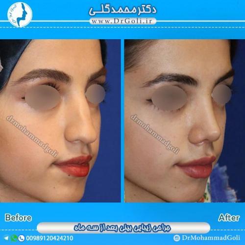 جراحی-بینی-طبیعی-1