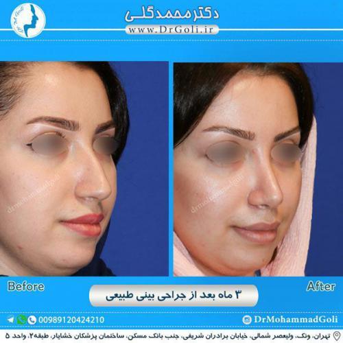 جراحی بینی طبیعی 10