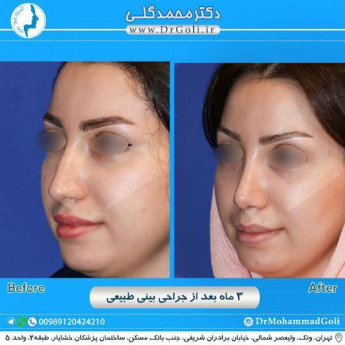 جراحی بینی طبیعی 11