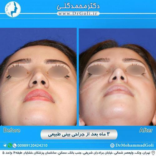 جراحی بینی طبیعی 12
