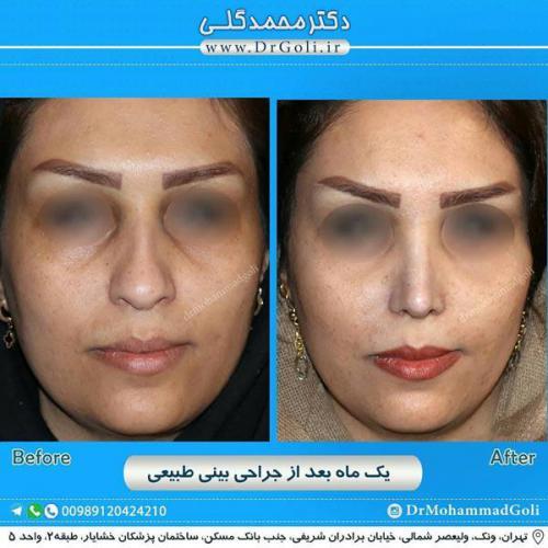 جراحی بینی طبیعی 13