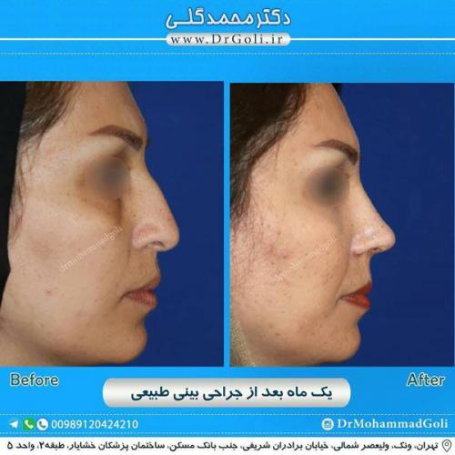 جراحی بینی طبیعی 14