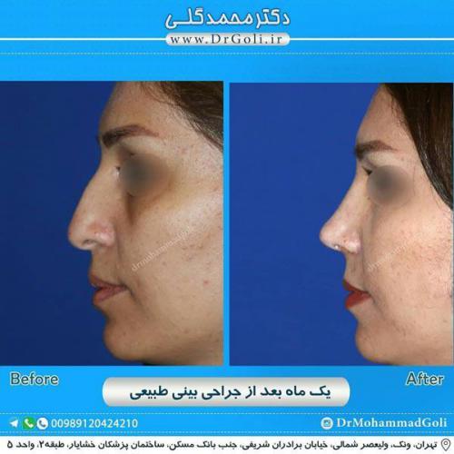 جراحی بینی طبیعی 15