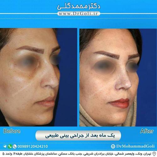 جراحی بینی طبیعی 16