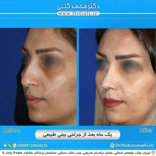 جراحی بینی طبیعی 17