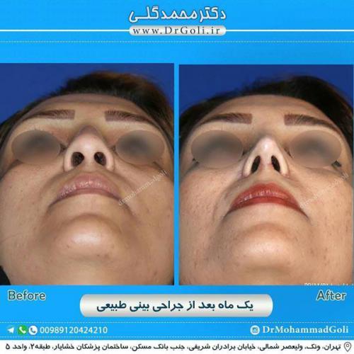 جراحی بینی طبیعی 18