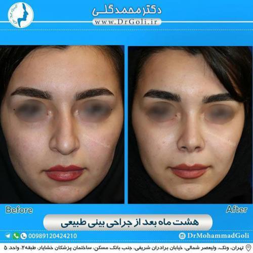 جراحی بینی طبیعی 20