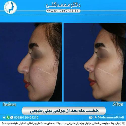 جراحی بینی طبیعی 21