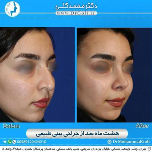 جراحی بینی طبیعی 23