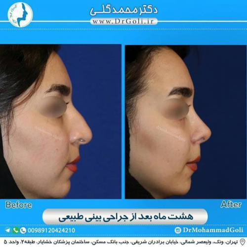 جراحی بینی طبیعی 24