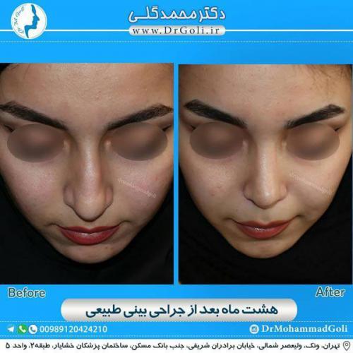 جراحی بینی طبیعی 25