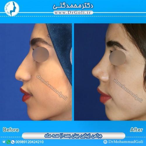 جراحی بینی طبیعی 3