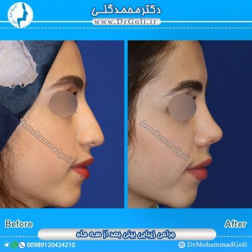 جراحی بینی طبیعی 4