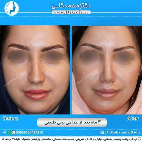 جراحی بینی طبیعی 7