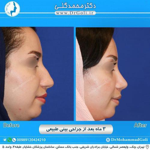 جراحی بینی طبیعی 8