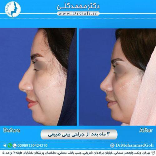 جراحی بینی طبیعی 9