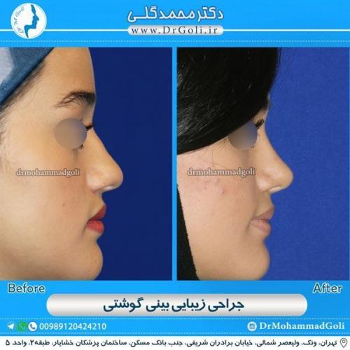 جراحی بینی گوشتی 10