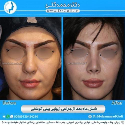 جراحی بینی گوشتی 11