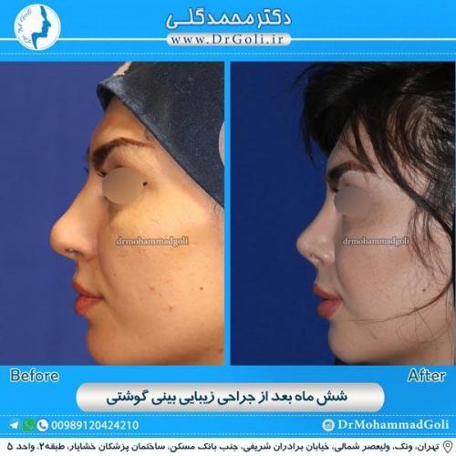 جراحی بینی گوشتی 12