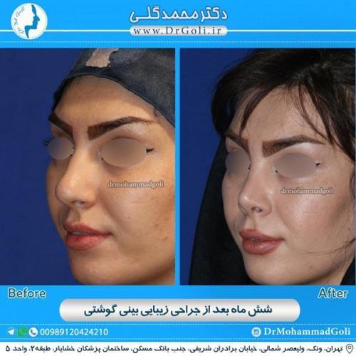 جراحی بینی گوشتی 13