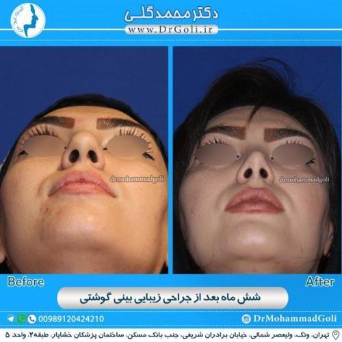 جراحی بینی گوشتی 14