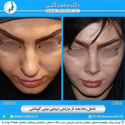 جراحی بینی گوشتی 15
