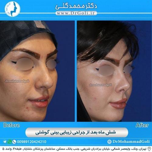 جراحی بینی گوشتی 16