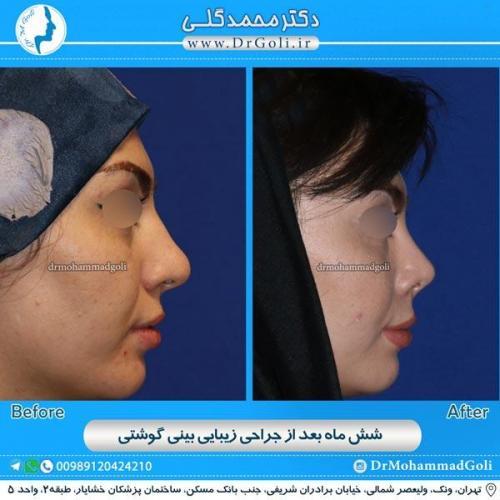 جراحی بینی گوشتی 17