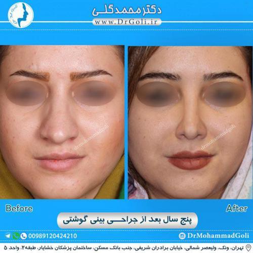 جراحی بینی گوشتی 18