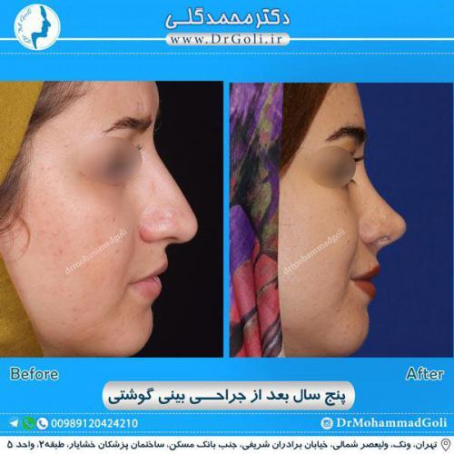 جراحی بینی گوشتی 19