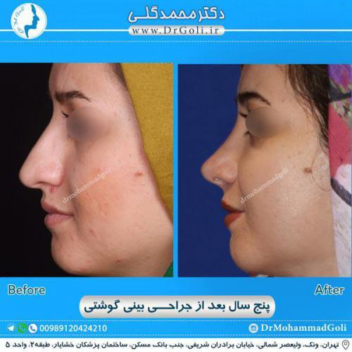 جراحی بینی گوشتی 20