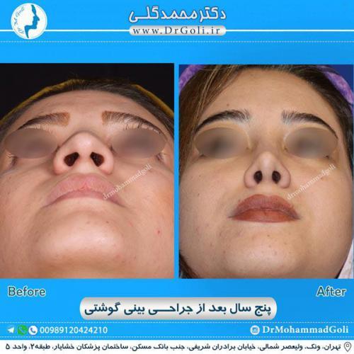 جراحی بینی گوشتی 21