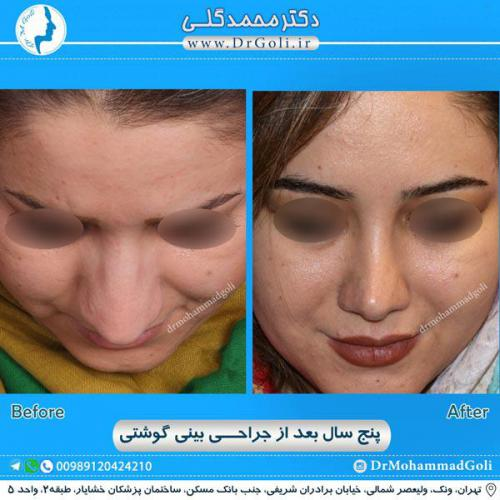 جراحی بینی گوشتی 22