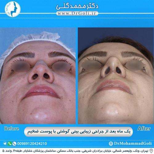 جراحی بینی گوشتی 23