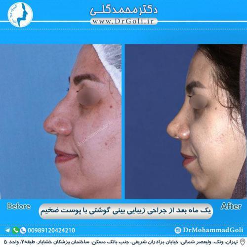 جراحی بینی گوشتی 25