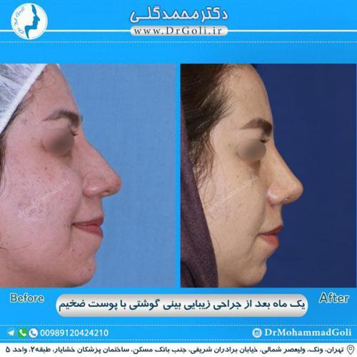 جراحی بینی گوشتی 26