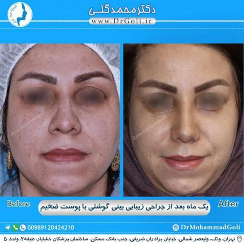 جراحی بینی گوشتی 27