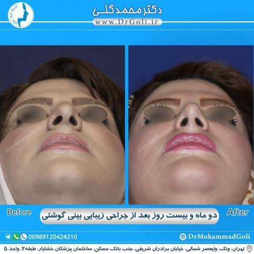 جراحی بینی گوشتی 28