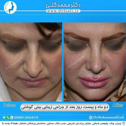 جراحی بینی گوشتی 29