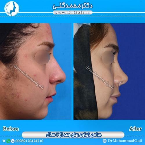 جراحی بینی گوشتی 3
