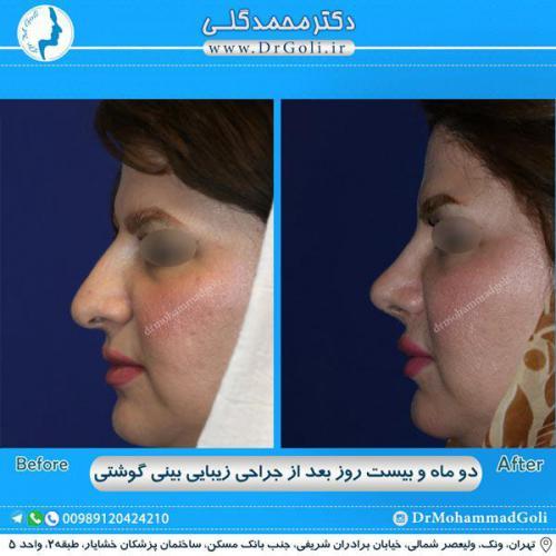 جراحی بینی گوشتی 30