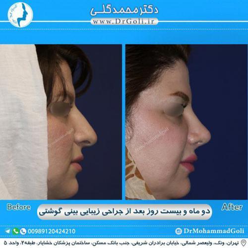 جراحی بینی گوشتی 31
