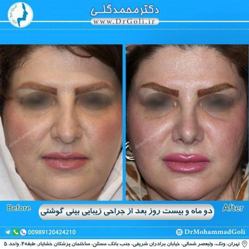 جراحی بینی گوشتی 32
