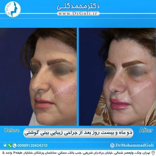 جراحی بینی گوشتی 33