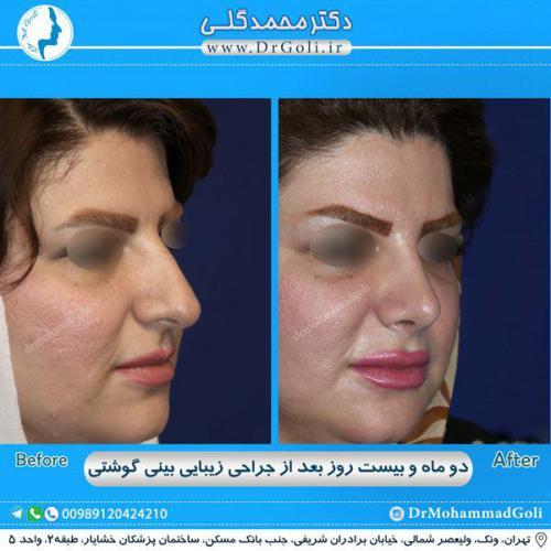 جراحی بینی گوشتی 34
