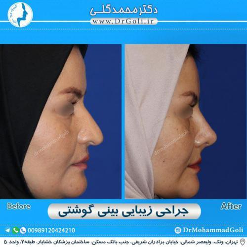 جراحی بینی گوشتی 37